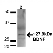 Rabbit Anti-BDNF Antibody used in Western blot (WB) on Brain (SPC-703)