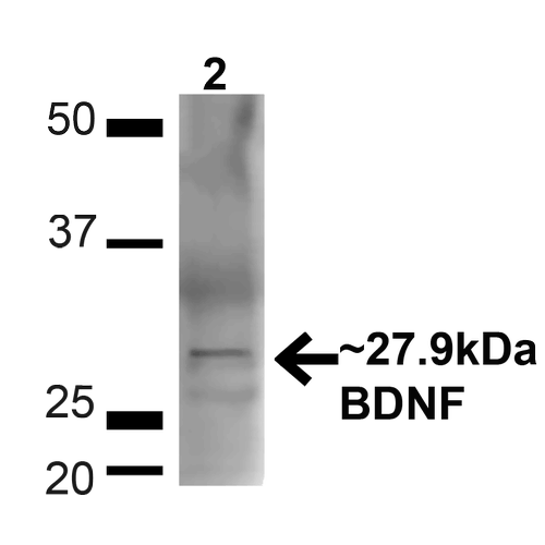 <p>Western blot analysis of Mouse Brain showing detection of ~27.9 Kda BDNF protein using Rabbit Anti-BDNF Polyclonal Antibody (SPC-703). Lane 1: MW Ladder. Lane 2: Mouse Brain (20 µg). Load: 20 µg. Block: 5% milk + TBST for 1 hour at RT. Primary Antibody: Rabbit Anti-BDNF Polyclonal Antibody (SPC-703) at 1:1000 for 1 hour at RT. Secondary Antibody: Goat Anti-Rabbit: HRP at 1:2000 for 1 hour at RT. Color Development: TMB solution for 12 min at RT. Predicted/Observed Size: ~27.9 Kda.</p>