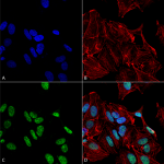 SPC-710_GDNF_Antibody_ICC-IF_Human_SK-N-BE-Cells-Human-Neuroblastoma-cells_60X_Composite_1.png