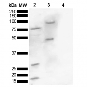 Rabbit Anti-Alpha Synuclein Antibody (pSer129) used in Western blot (WB) on Human, Mouse brain lysate (SPC-742)