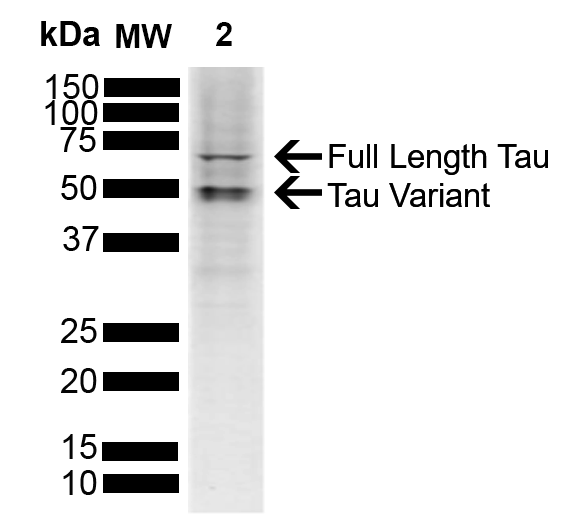 Tau Proteins for Neurodegeneration Research | StressMarq