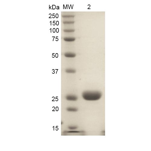 Heme Oxygenase Proteins