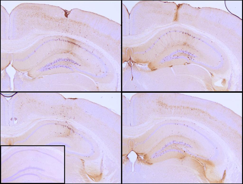 SPR-330_Tau Preformed Fibrils Protein IHC-1